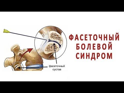 Фасеточный болевой синдром при артрозе межпозвонковых суставов
