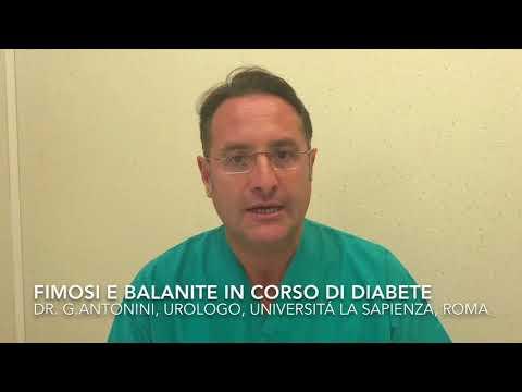 Il est possible pour la toux dans le diabète