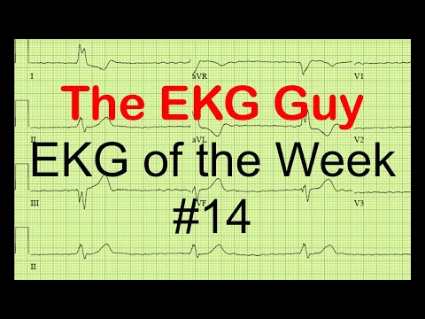 EKG of the Week #14