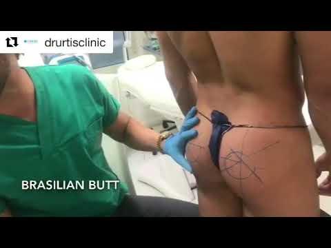 Vibrazione nella prostata negli uomini