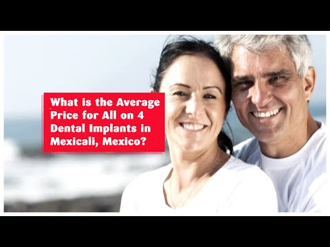 What is the Average Price for All on 4 Dental Implants in Mexicali, Mexico?