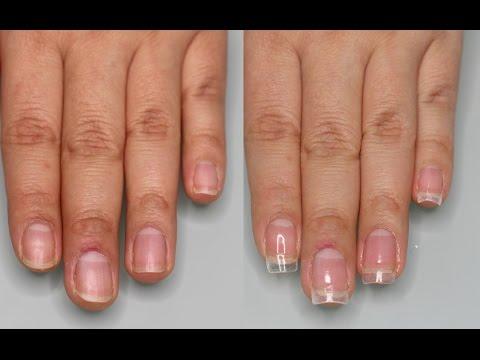 Los tratamientos de la uña encarnada la corrección láser