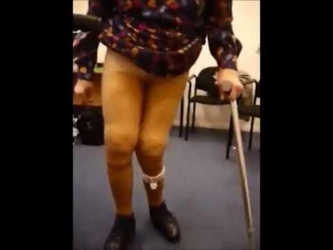 Der Zapfen auf dem Daumen des Beines die chirurgische Behandlung