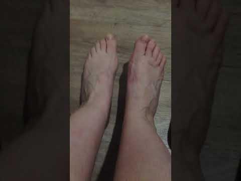 Последствия операции на стопе----ХАЛИУС ВАЛЬГУС-- прошло полтора года....