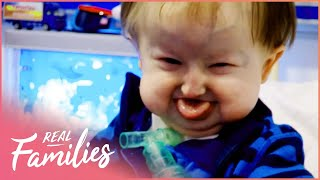 Being Born With Hallermann-Streiff Syndrome | Temple Street Children