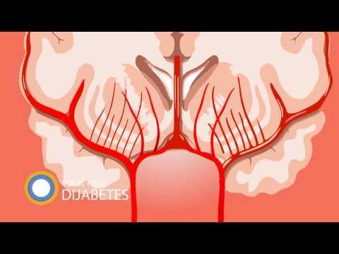 Hipertenzija ekg