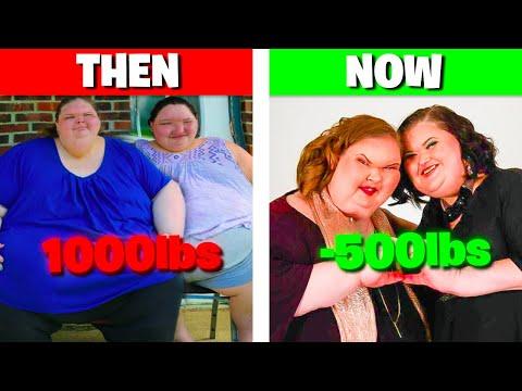 Pierderea în greutate la pacienții cu dializă vârstnici