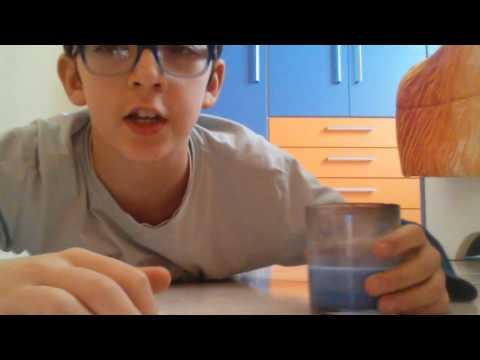calcoli nella prostata e nella vescica juana