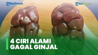 Wapada, Kenali 4 Ciri Aalami Gagal Ginjal, Pembengkakan pada Pergelangan Kaki hingga Urin Berdarah