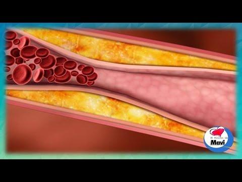Como destapar las arterias tomando un vaso de este jugo - Remedios caseros