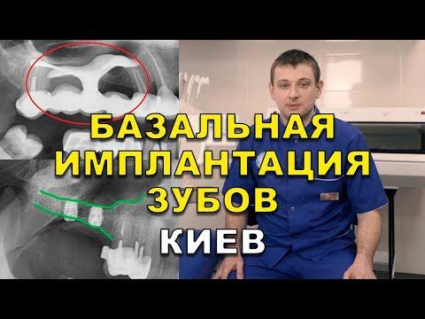 Базальная имплантация зубов под ключ Киев