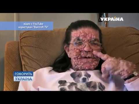 Сколько стоит лечение папилломы вируса у мужчин