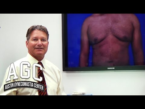 Educational Video: Is It Gynecomastia Or Fat?