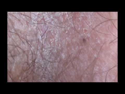 Удалила веснушки на лице