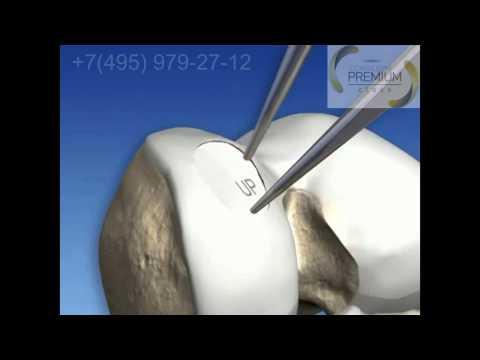 Лечение артрита голеностопного сустава народными методами