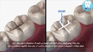 راه جلوگیری از پوسیدگی دندان