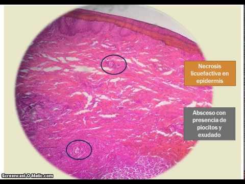 Atopichesky la dermatitis a los niños los períodos