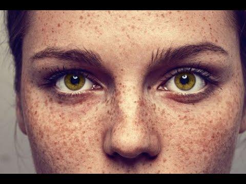 Der dunkle rauhe Fleck der Haut