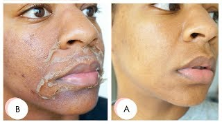 I GOT A CHEMICAL PEEL ! Full Process + Results   Remove Dark Marks, Enlarged Pores & Wrinkles