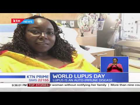Globe marks World Lupus Day as 700,000 Kenyans estimated to be living with Lupus