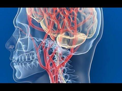 Чем грозит если не лечить шейный остеохондроз