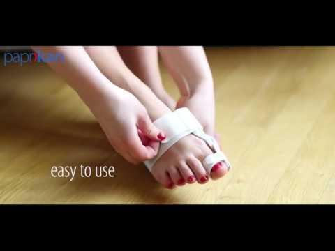 Wie den Zapfen auf dem Finger vom Griff in den häuslichen Bedingungen zu entfernen