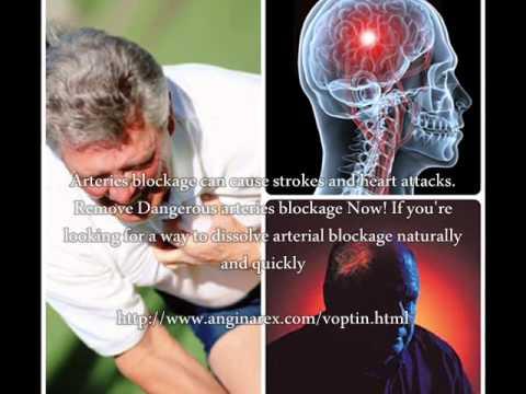 Vous devez savoir sur lhypertension