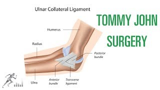 Tommy John surgery for a UCL injury of the elbow