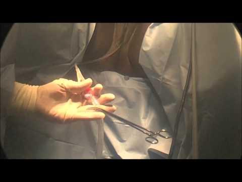 Hogyan lehet megérteni, hogy prosztatagyulladása van