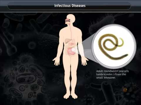 Video Infectious agents