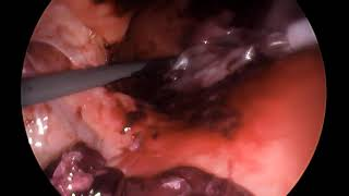 Laparoscopic extraction of an intact cesarean scar ectopic pregnancy at 10 weeks of gestation