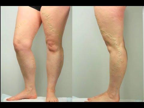 Mâncărimi pielii pe picioare în varicoză