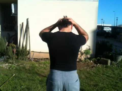 Sporgenza di dischi di una spina dorsale su trattamento