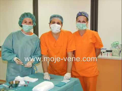 Inizio di varicosity di trattamento
