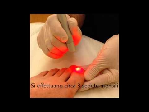 Da un fungo di unghie quando allattamento al seno