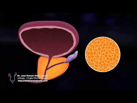 Il succo di una prostata durante leccitazione