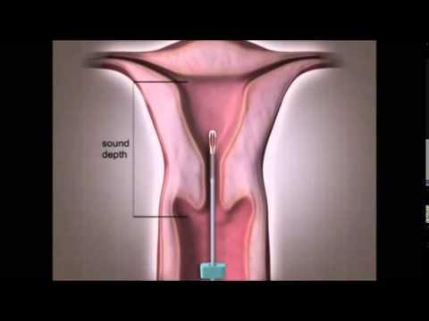 Spiral Nedir, Spiral Nasıl Takılır, Hormonlu Spiral Fiyatları Spiral Zararları Yan Etkileri Video