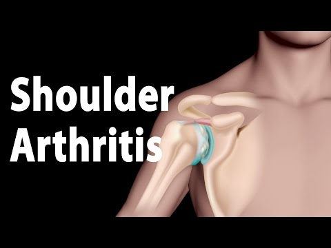 Video Shoulder Arthritis Narrated Animation.