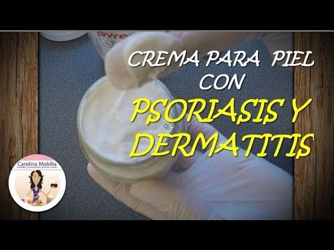 Eczema su mani a donne incinte