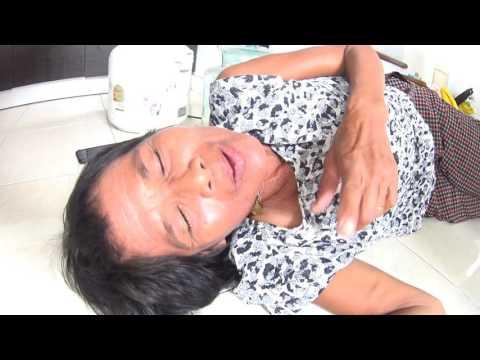 ศัลยแพทย์หลอดเลือดต่ำ Tagil