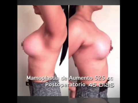 Llevan cuanto de pecho implanty