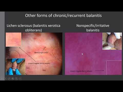 Balanitis és posthitis - Benyó Urológia