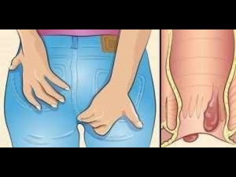 La cote du stimulant pour les femmes