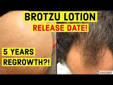 Leki stosowane w leczeniu łysienia