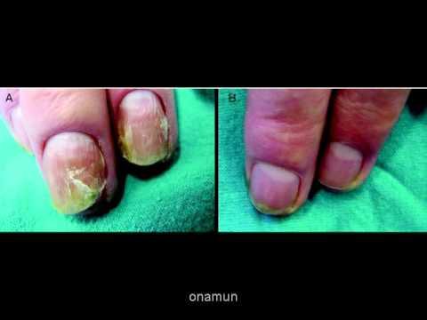 El aceite del espliego de la psoriasis las revocaciones