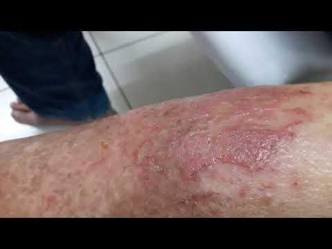 La dieta del bambino a dermatite atopic 1 anno