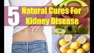 Lunas Sa Kidney Disease At Dialysis. Posible Mangyari Sa 5 Tips   Payo Ni Doc Willie Ong #571