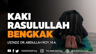 Kaki Rasulullah Sampai Bengkak | Ustadz Dr. Abdullah Roy, M.A.