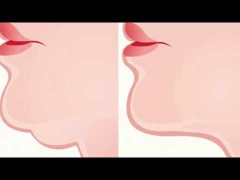 El envolvimiento para el adelgazamiento del vientre y los lados por la miel las revocaciones