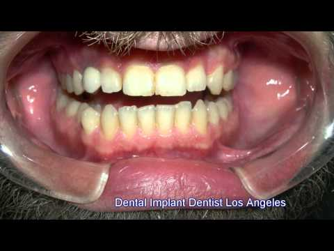 Dental Implant Dentist Los Angeles